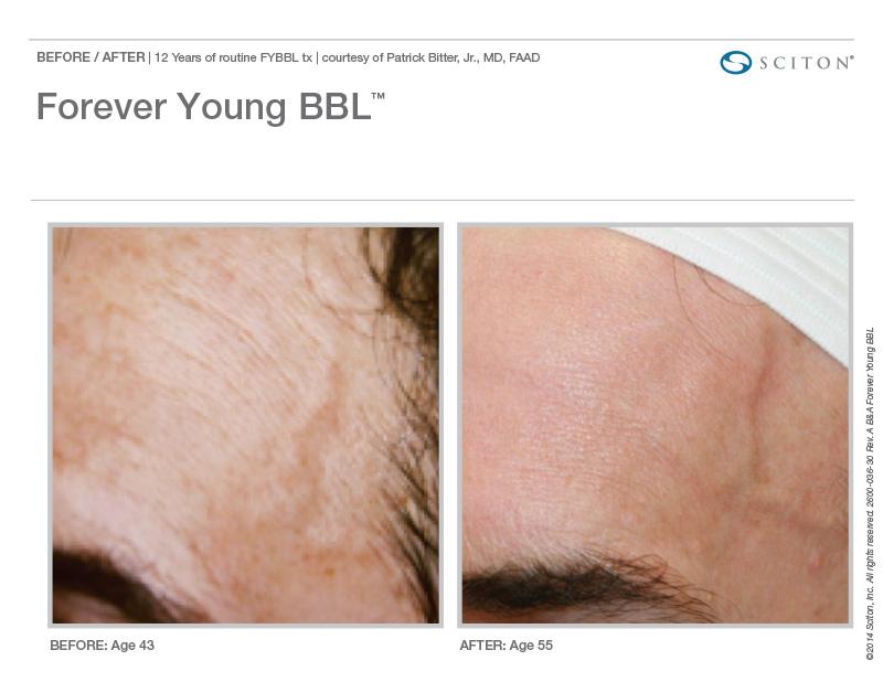 BBL Hero Forehead