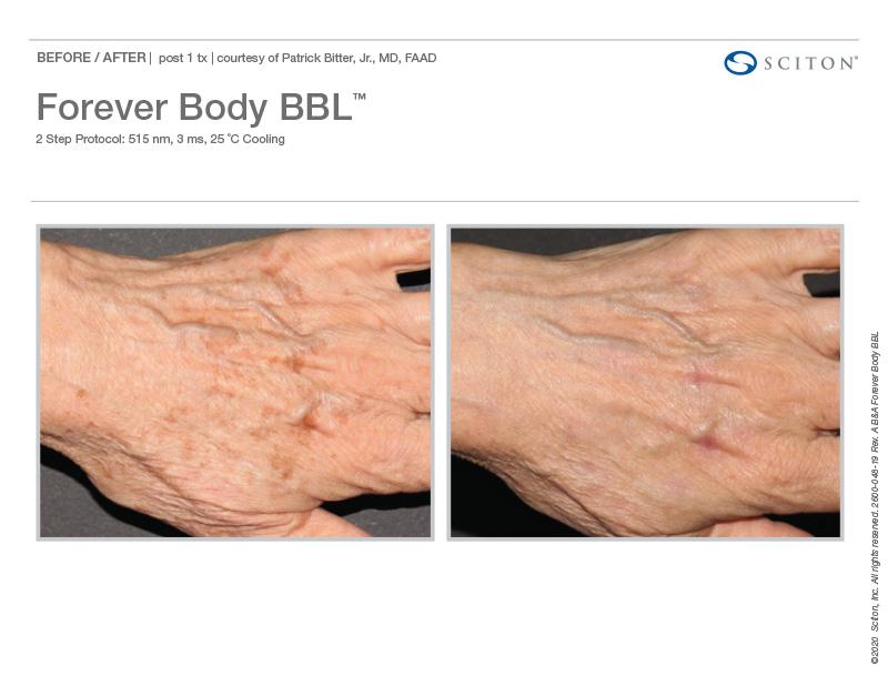 Forever-body-BBL-Hands