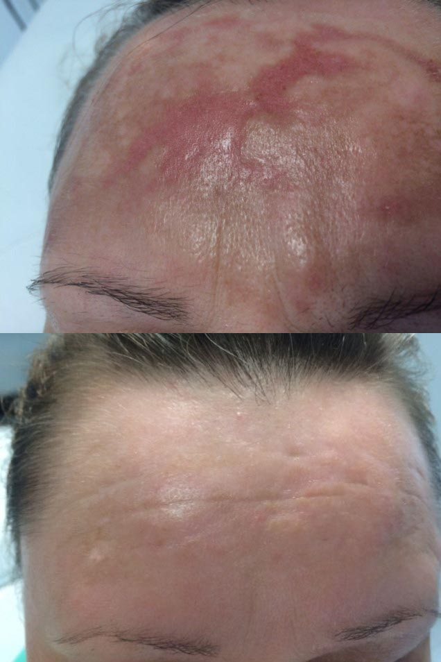 Rosacea scarlet before and after